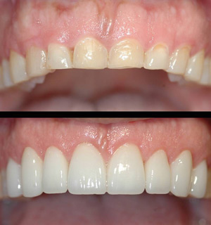 Esthetic Crown Lengthening