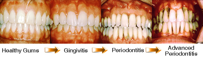 Gum Disease Diagnosis